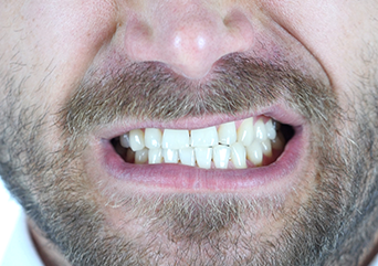 What is bruxism and is it related to TMJ/TMD?