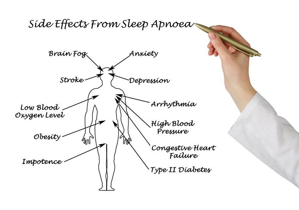 sleep apnoea side effects tmj centre melbourne